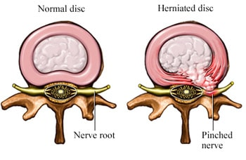 Herniated discs and Normal discs