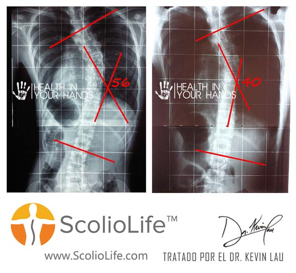 Xrays-before-and-after-01-ES