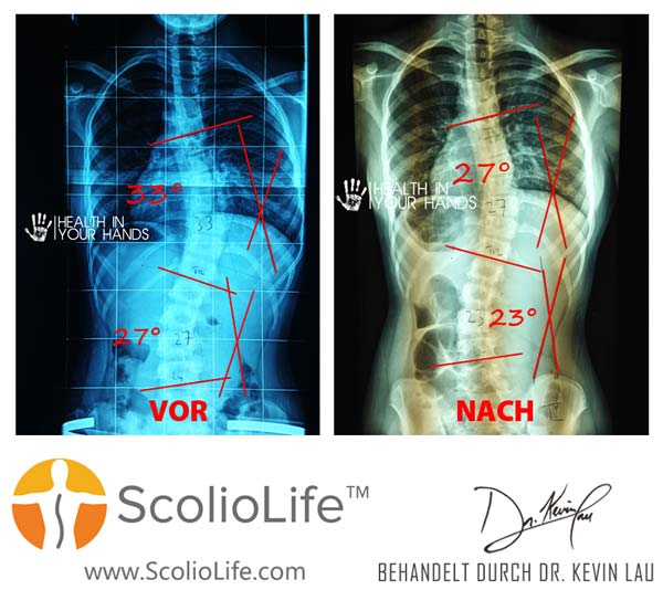 Xrays-before-and-after-04-DE