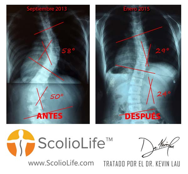 Xrays-before-and-after-07-ES