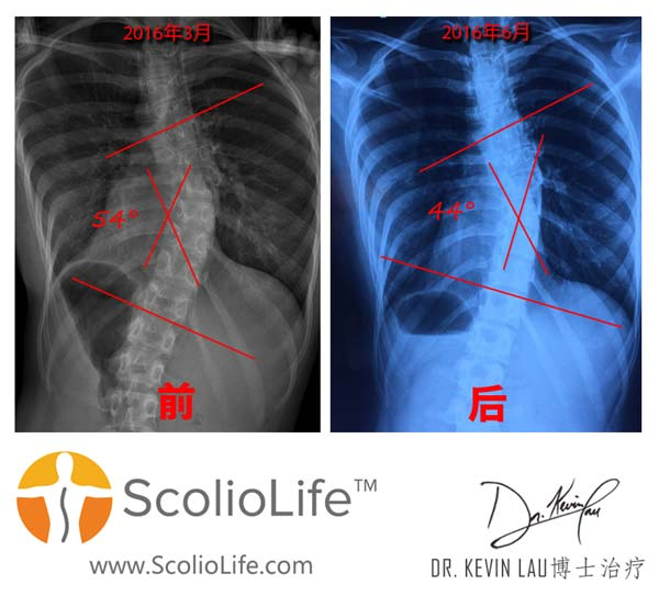 Xrays-before-and-after-09-CN