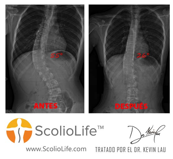 Xrays-before-and-after-10-ES
