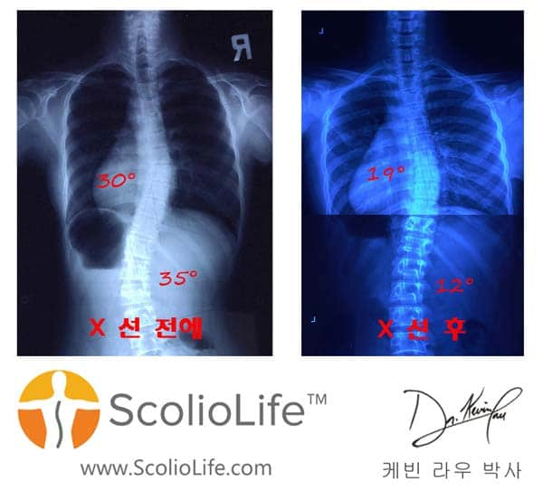Xrays-before-and-after-13-KR