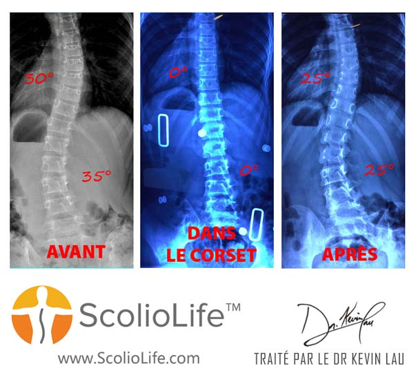 Xrays-before-and-after-14-FR