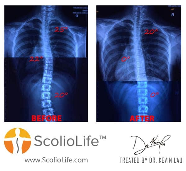 Xrays-before-and-after-17-EN