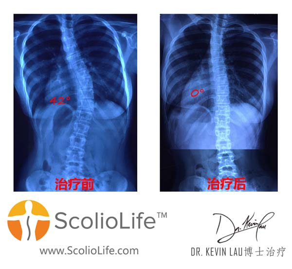 Xrays-before-and-after-18-CN