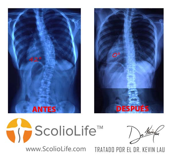 Xrays-before-and-after-18-ES