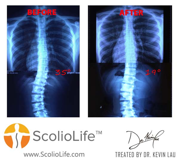 Xrays-before-and-after-23-EN