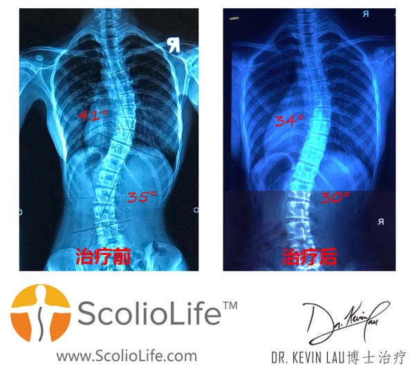 Xrays-before-and-after-26-CN