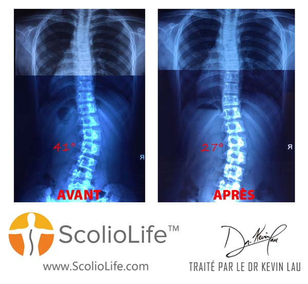 Xrays-before-and-after-27-FR