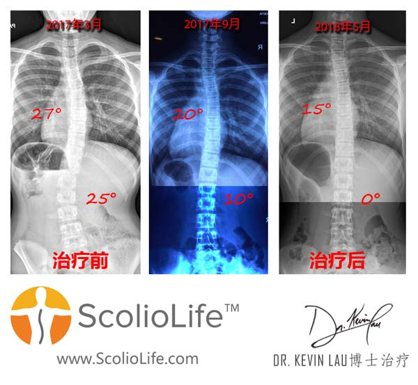 Xrays before and after 31 CN