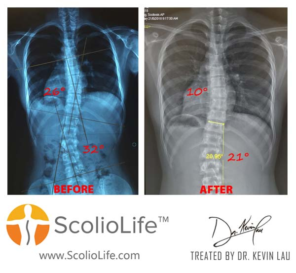 Xrays before and after 35 EN