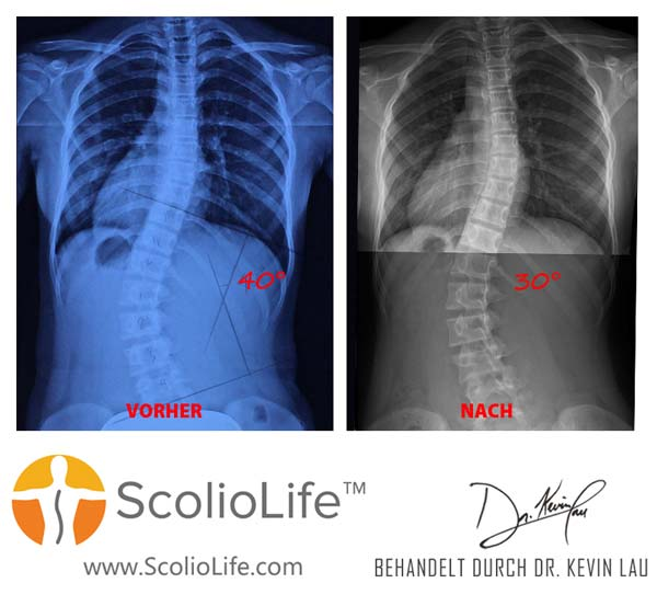 Xrays before and after 39 DE
