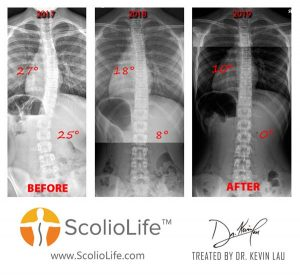 Xrays-before-and-after-49-EN