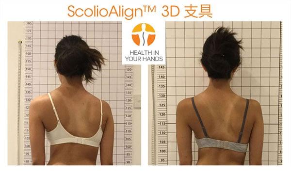 脊柱側彎3D背架