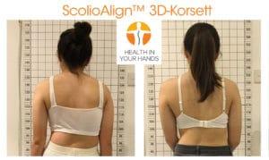 ScolioAlign 3D-Korsett