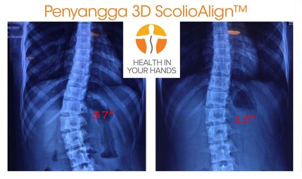 Penyangga ScolioAlign™ 3D