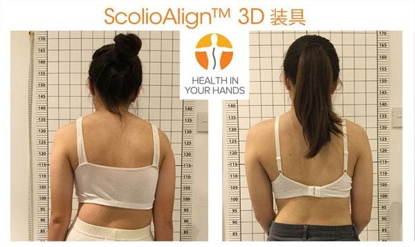 ScolioAlign™ 3D装具(コルセット)