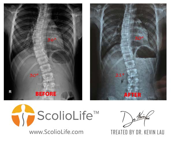 Xrays before and after 80