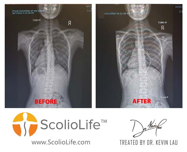 Xrays before and after 81