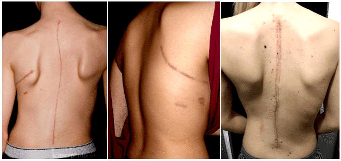 Cicatrices formées suite à différentes chirurgies de la colonne vertébrale